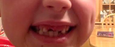 toothlesssmall