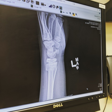 An x-ray of Scorch's left wrist.